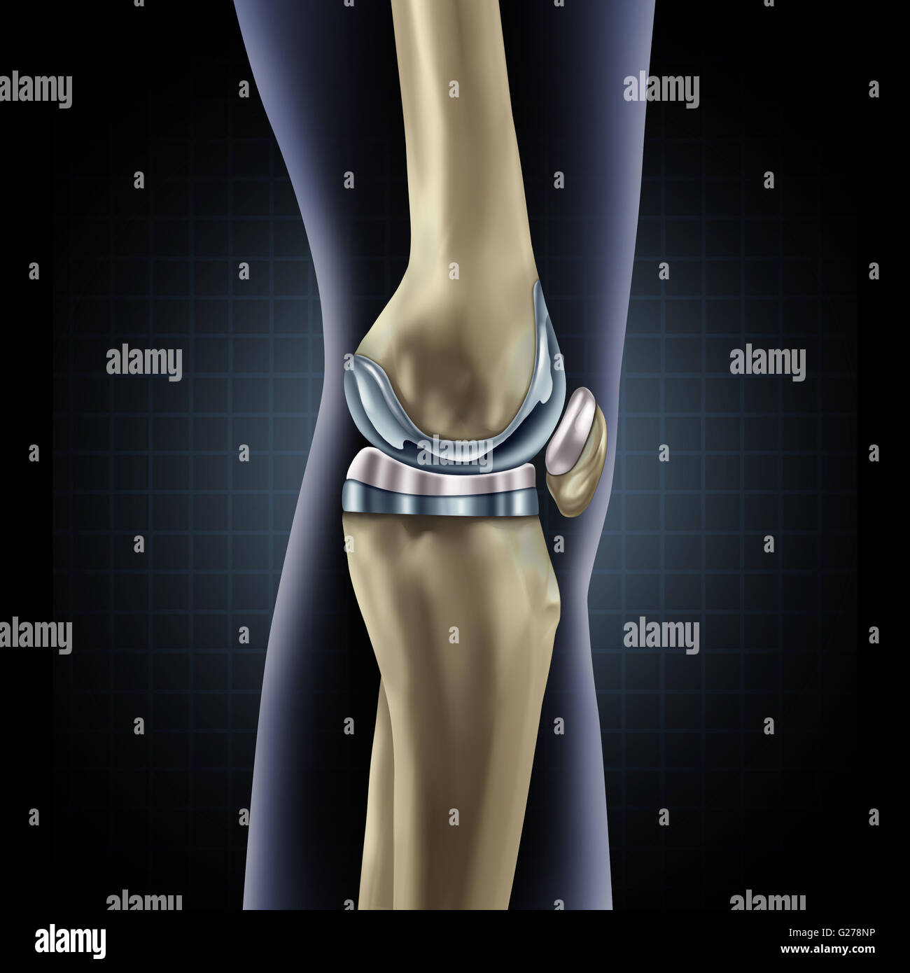 Knee replacement implant medical concept as a human leg anatomy ...