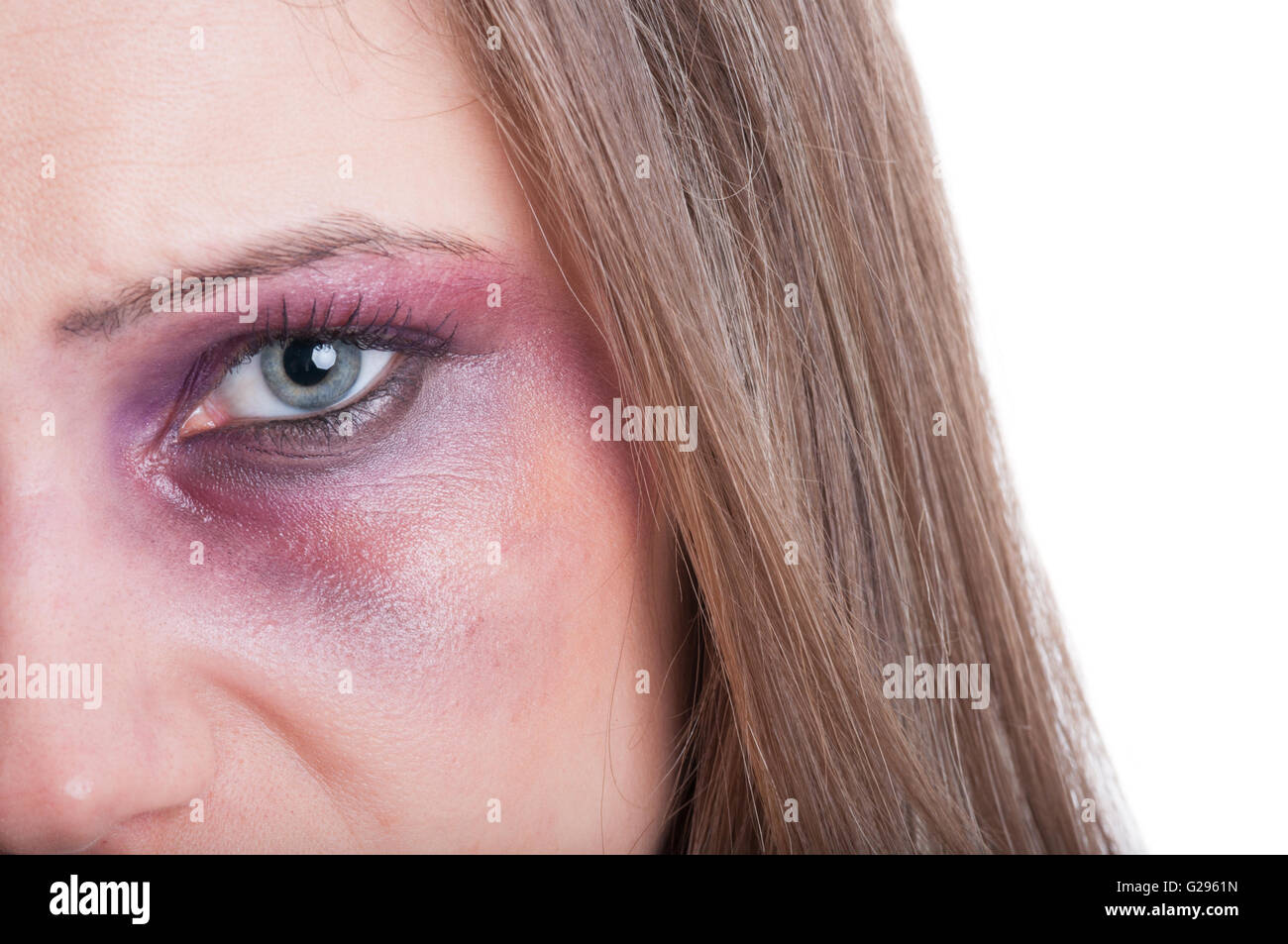 Black or bruised woman eye concept with copy space on whte background - Stock Image