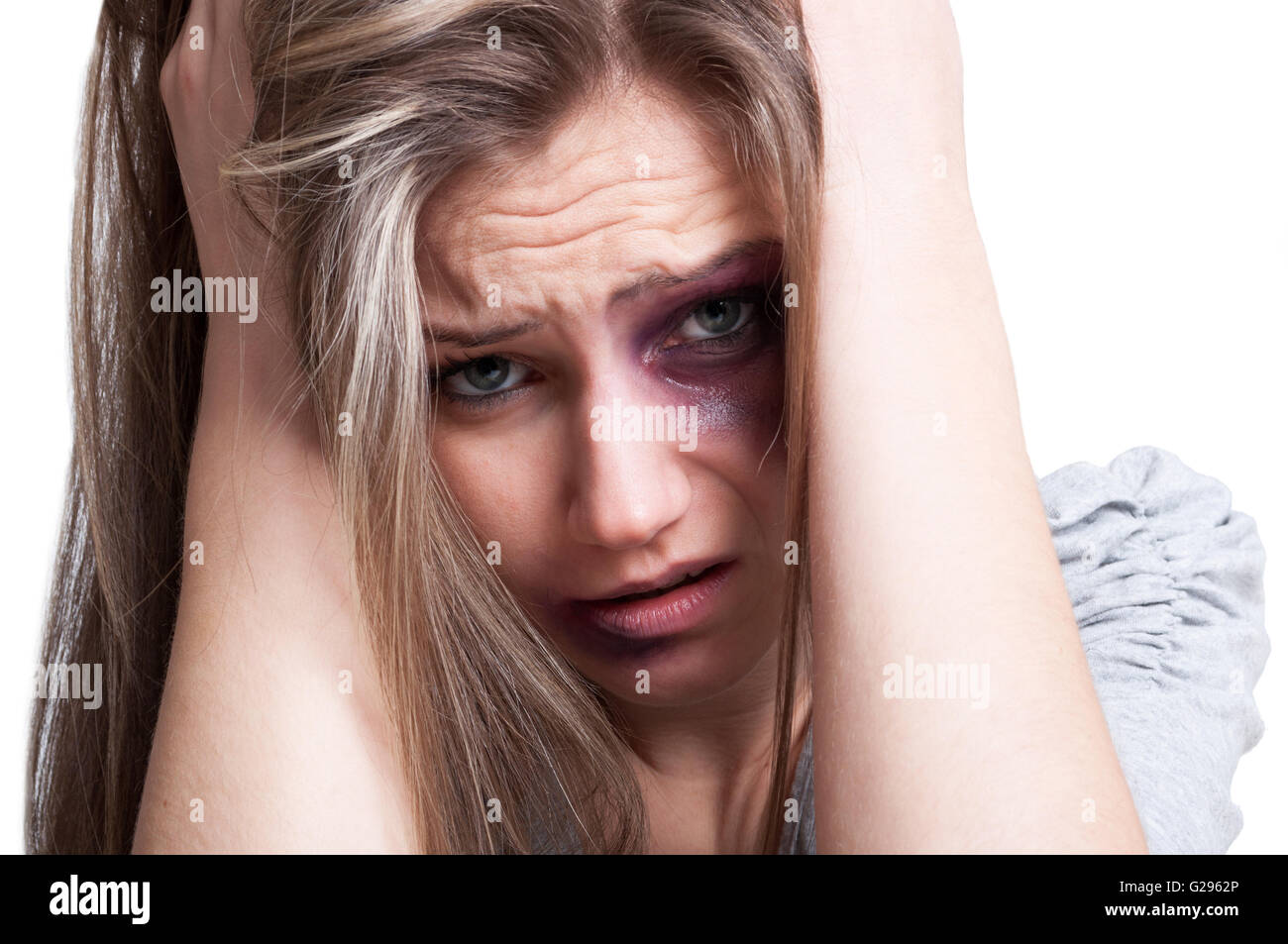 Hurt, injured, bruised and sad woman suffering. Domestic violence concept on white background - Stock Image