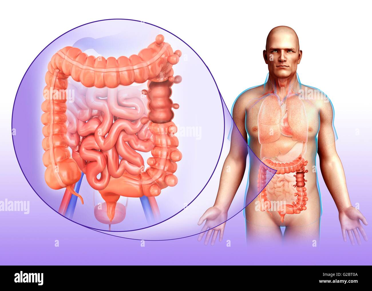 Diverticulosis Of The Large Intestine  Illustration Stock