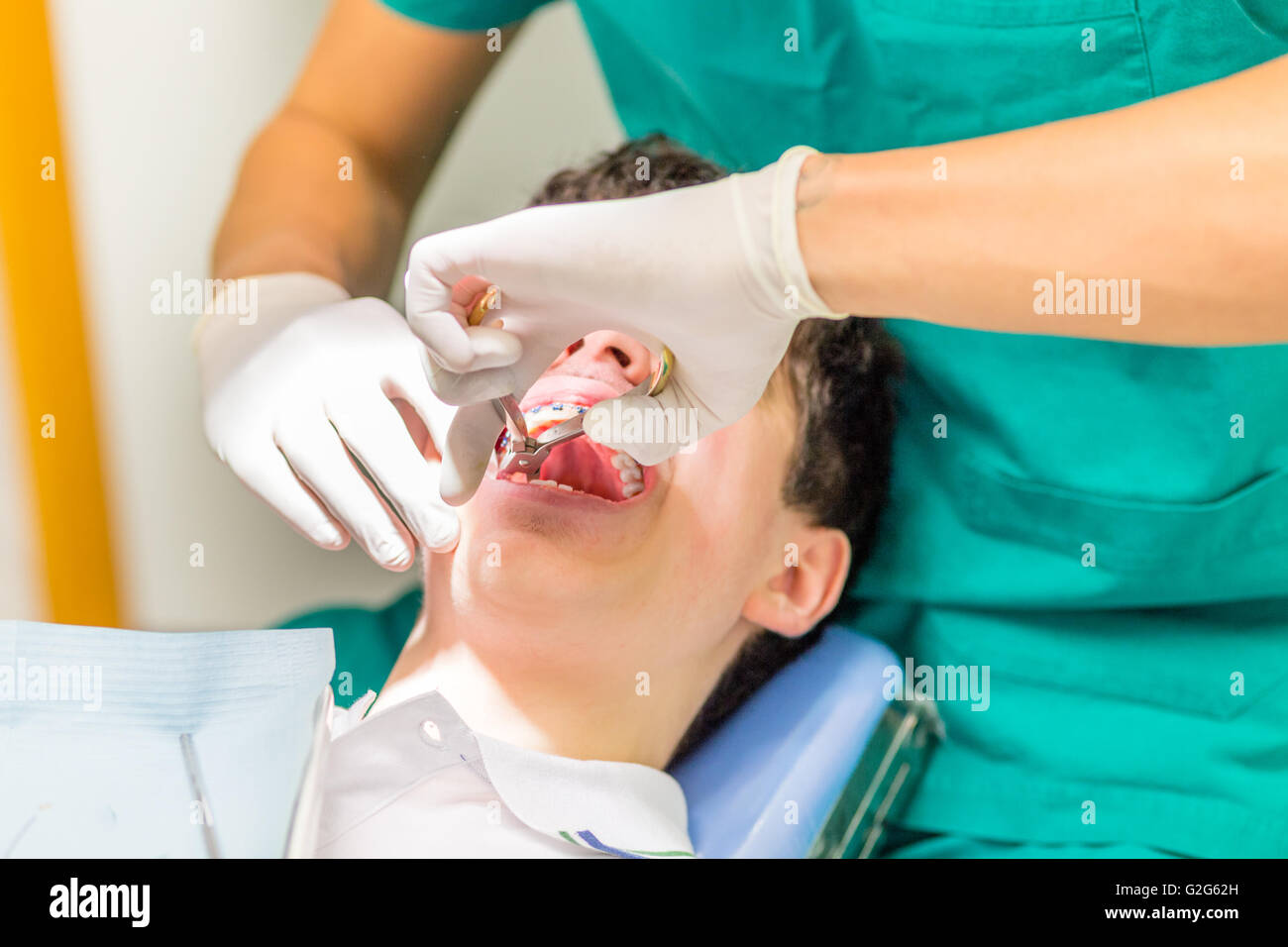 Dentist Pulling Tooth Stock Photos Amp Dentist Pulling Tooth