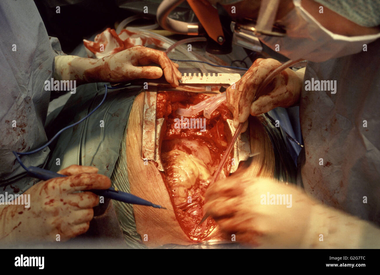 Surgeons perform open heart surgery at Sahlgrenska Hospital in Goteborg, Sweden. - Stock Image