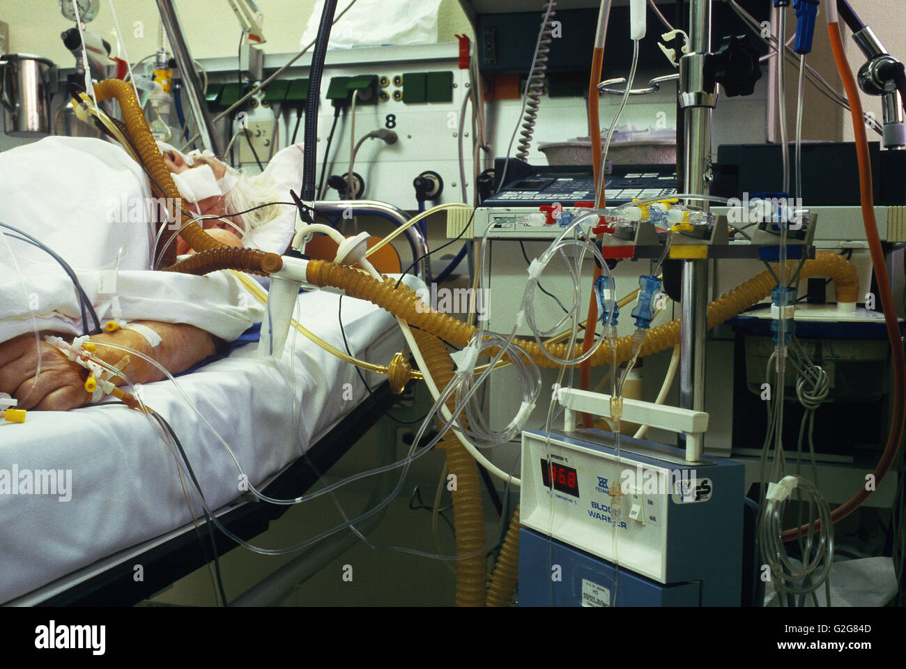 Patient in the intensive care unit (ICU) of St. Georg Hospital in Hamburg, Germany. - Stock Image
