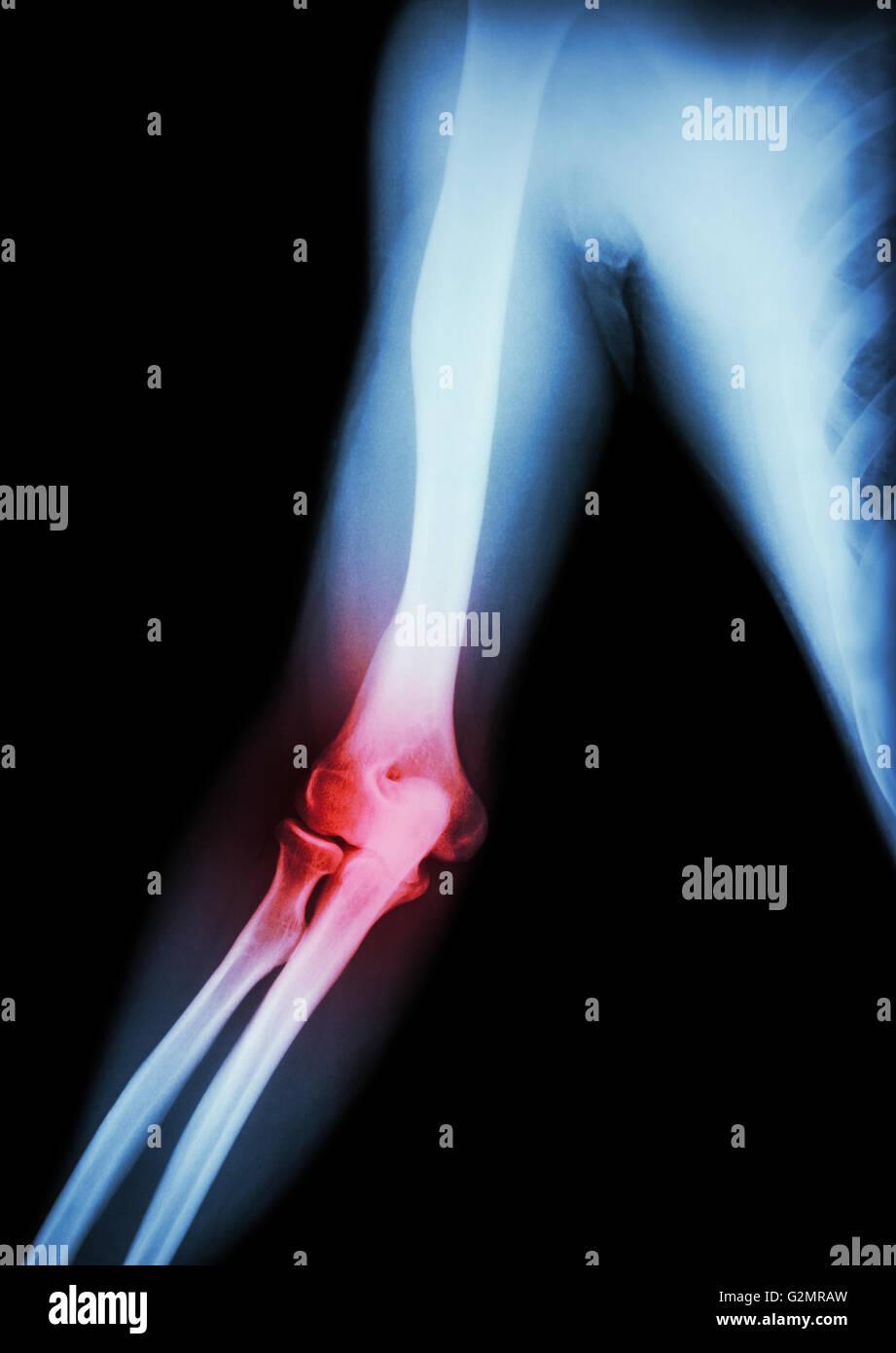 Arthritis at elbow . film x-ray of arm , elbow , forearm and Stock ...