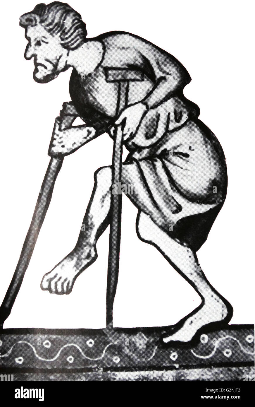 Illustration of a man with a deformed foot and crutches - Stock Image