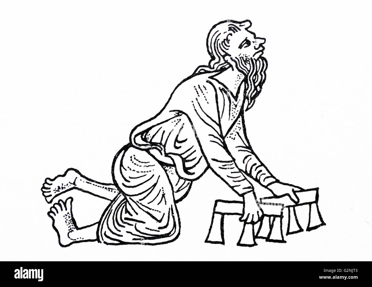 Illustration of a man with a deformed foot and crude crutches - Stock Image