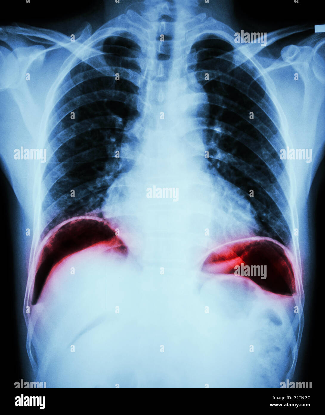 Peptic Ulcer Perforate Film Chest X Ray Show Free Air Under Dome Stock Photo Alamy