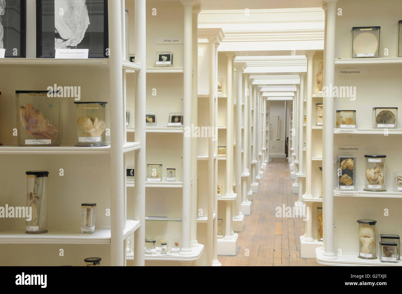 Scotland, Edinburgh, Surgeons Hall Museum, specimen cases Stock ...