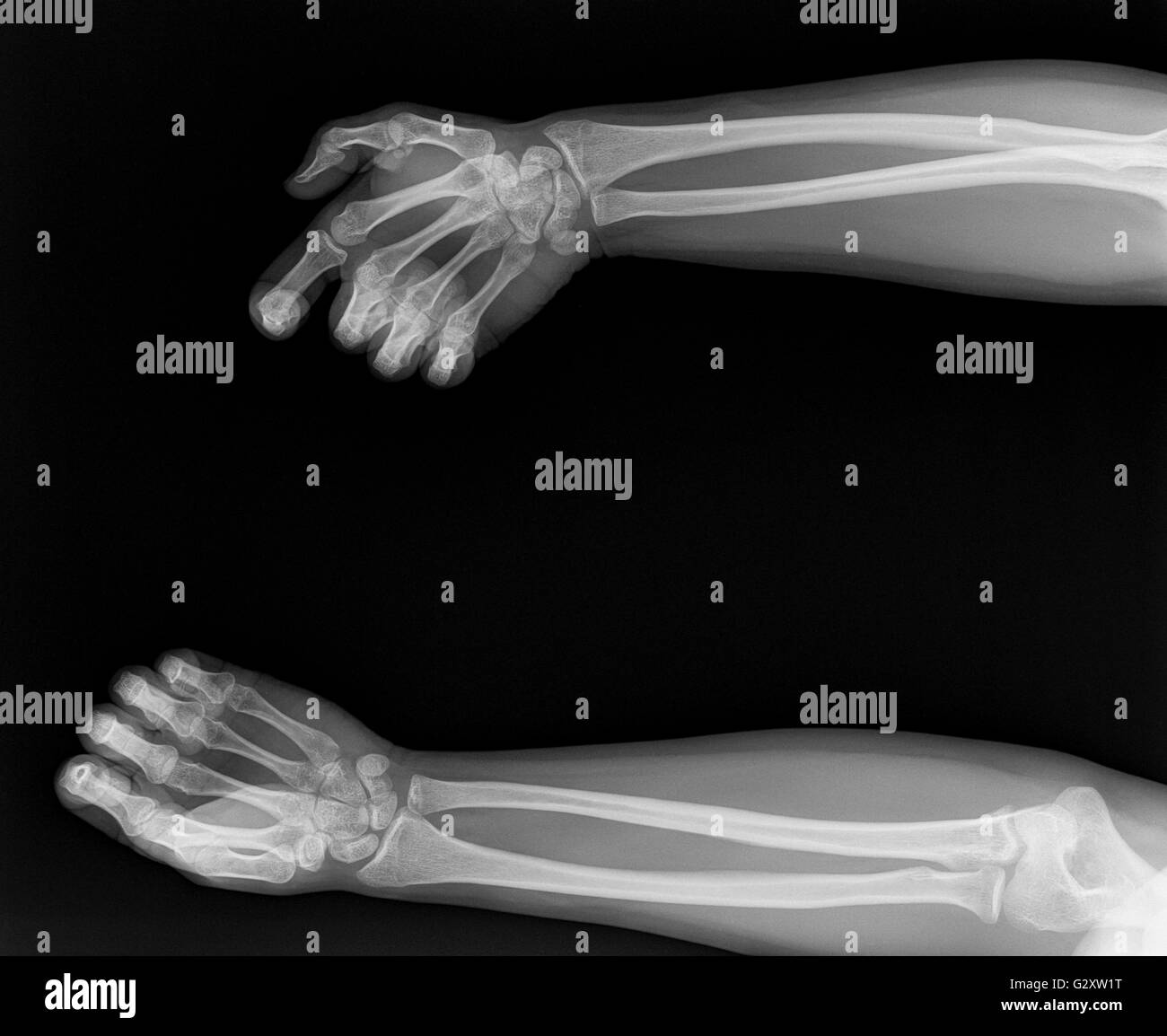 X-ray of hands - Stock Image