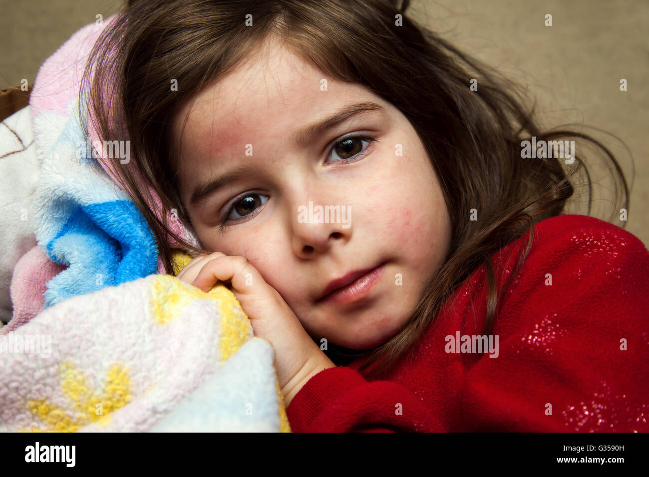 A young girl with a fever rash cuddles with a blanket and looks at the camera with a blank expression. - Stock Image