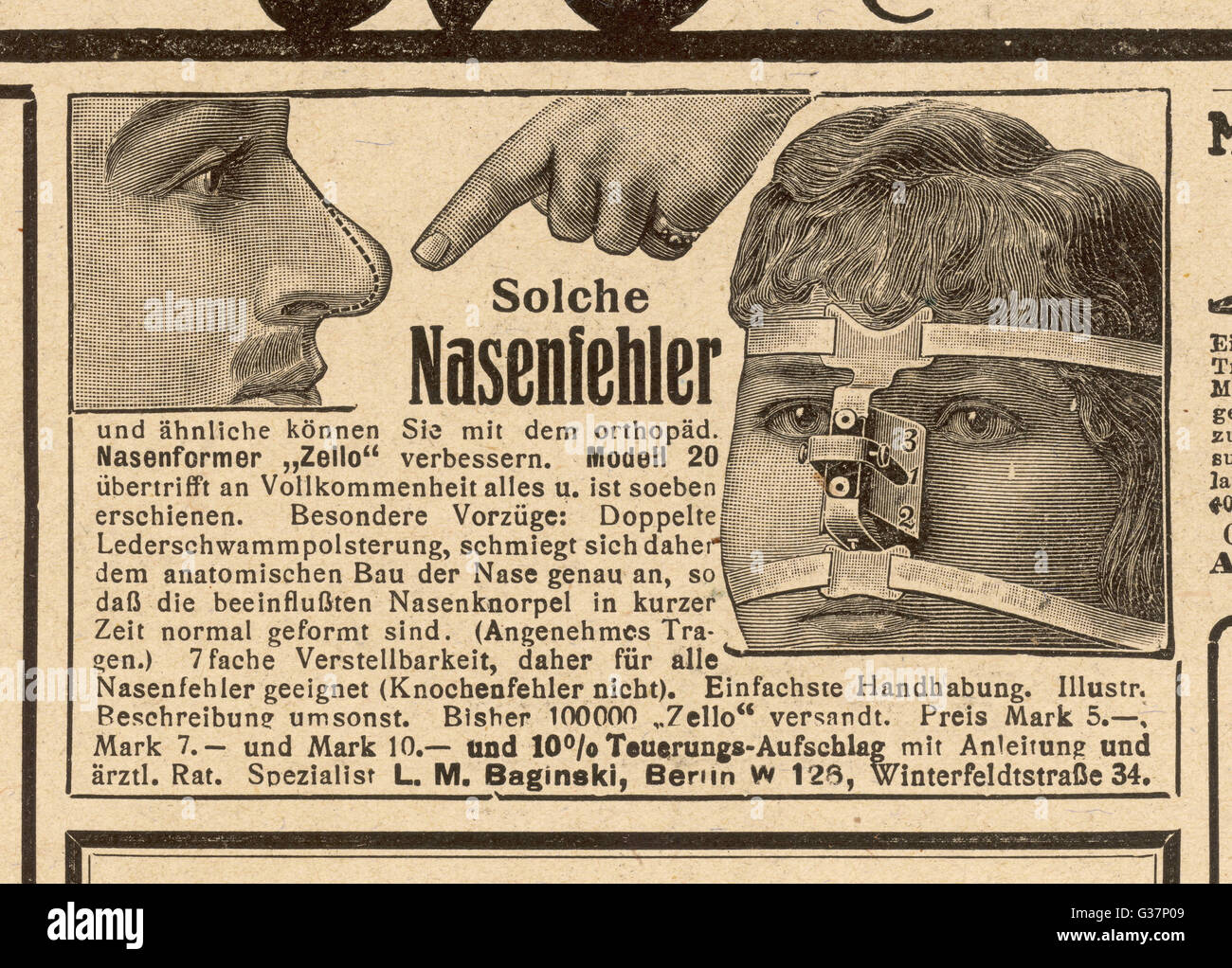 If you want to change the shape of your nose, just use Herr Spezialist Baginski's delightful device       Date: - Stock Image