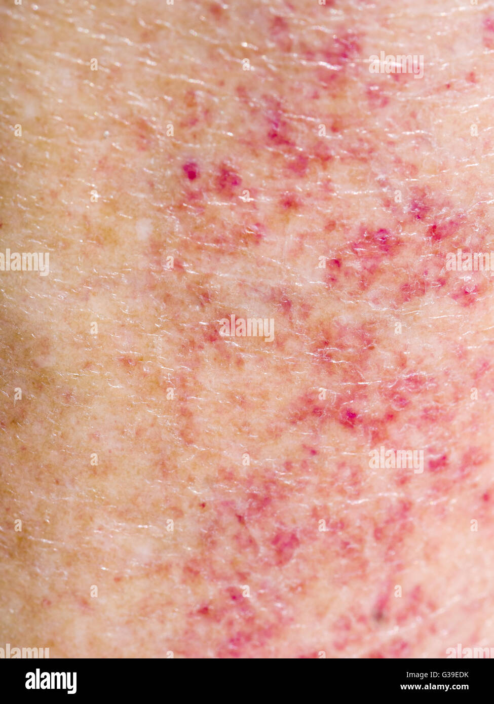 Red rash from combining sunbathing and medication. Allergy, sensitivity. - Stock Image