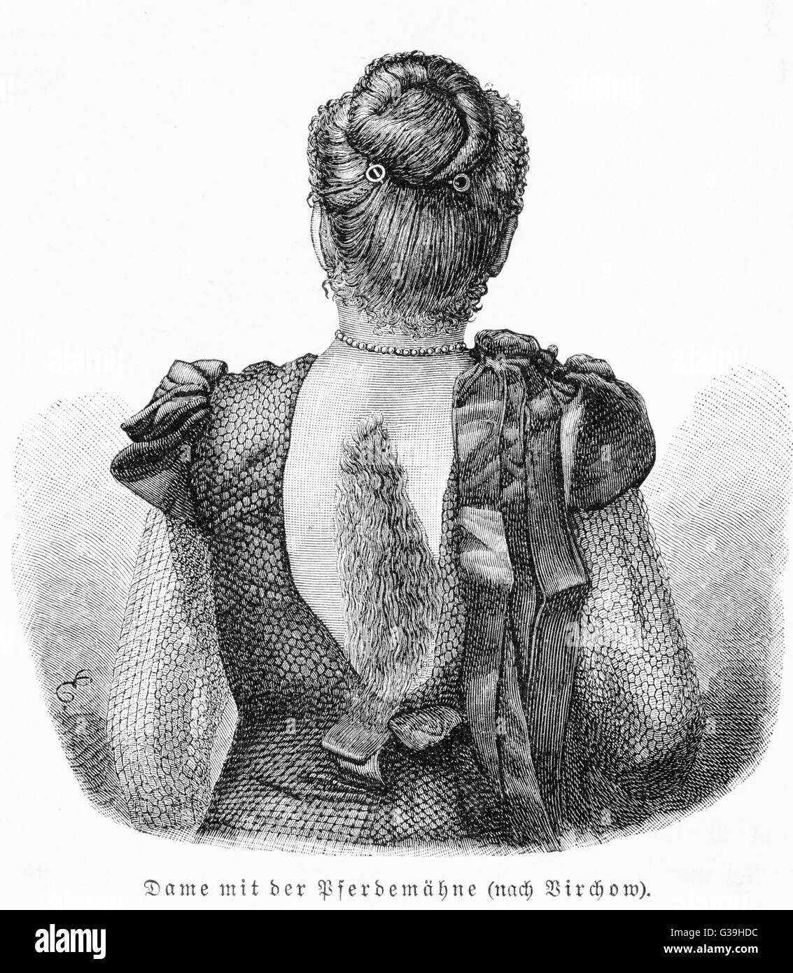 A lady with an abnormal growth  of hair on her back         Date: late 19th century - Stock Image
