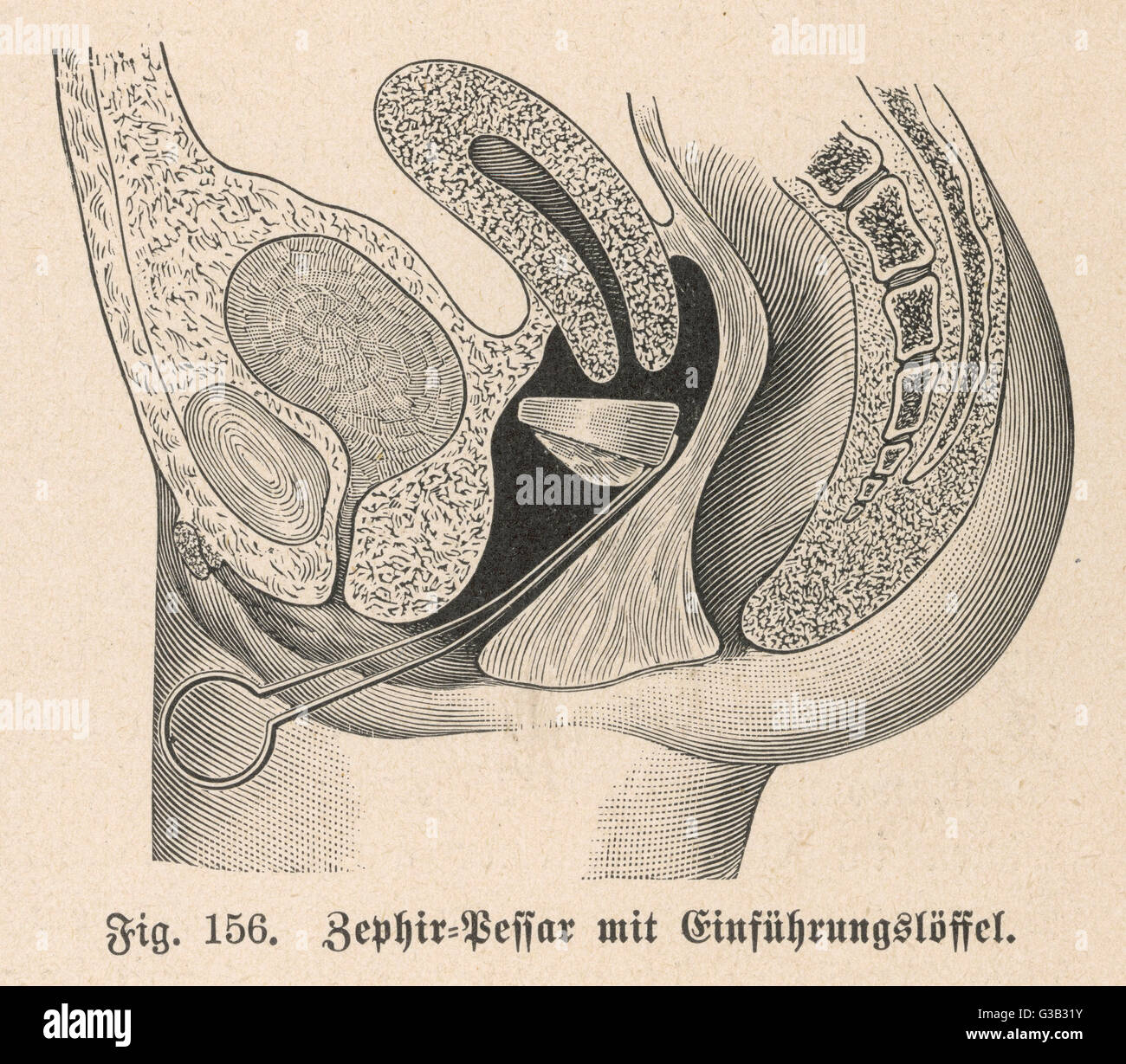 Diagram showing the insertion  of a Zephir cap, using a metal  instrument which resembles a  pair of silver tongs - Stock Image
