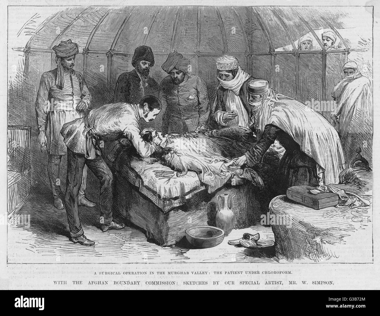 A surgical operation in the  Murghab valley; the patient is  under chloroform        Date: 1885 - Stock Image
