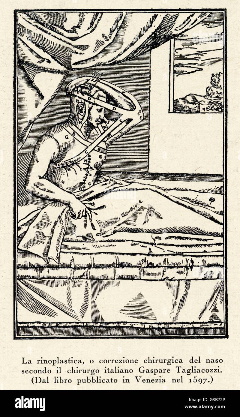 Rhinoplasty: nose correction          Date: Sixteenth century - Stock Image