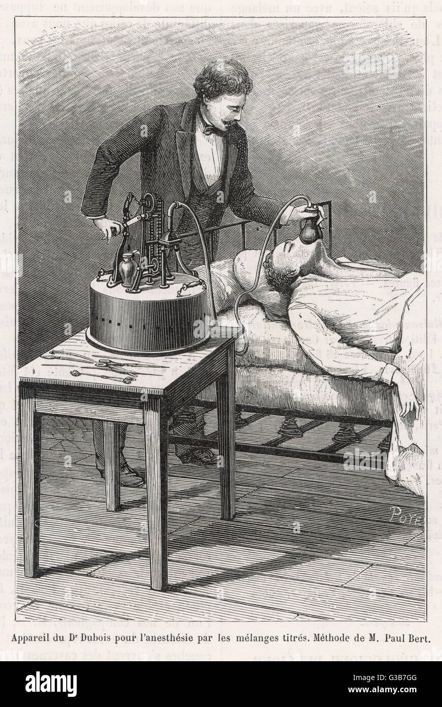 Dr. Paul Bert's method of  using compressed nitrous oxide         Date: 1885 - Stock Image
