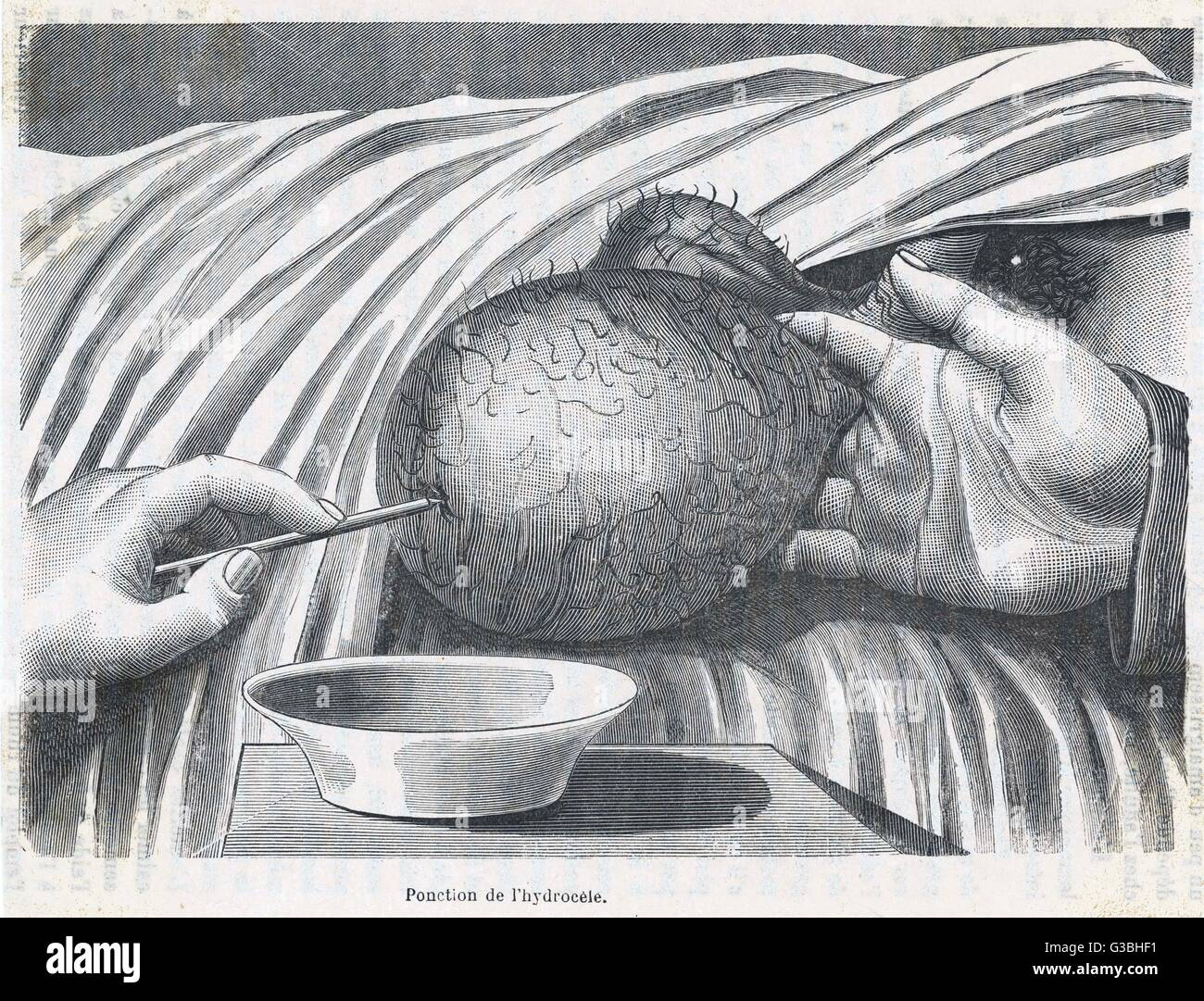 Removing fluid from a large  testicular growth         Date: circa 1870 - Stock Image