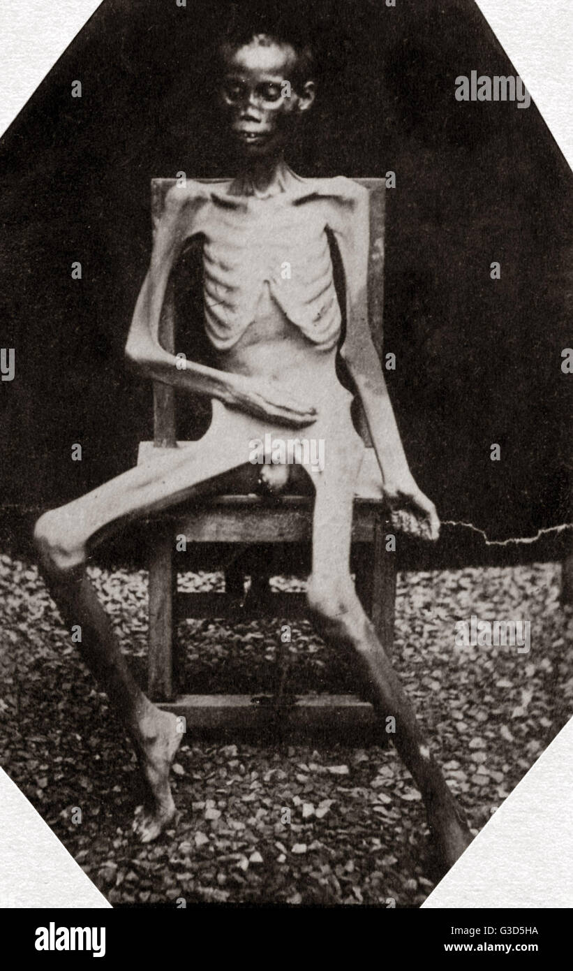 An opium addict, photographed 48 hours before death in Saigon Prison, Indo-China, Vietnam circa 1880s.     Date: - Stock Image