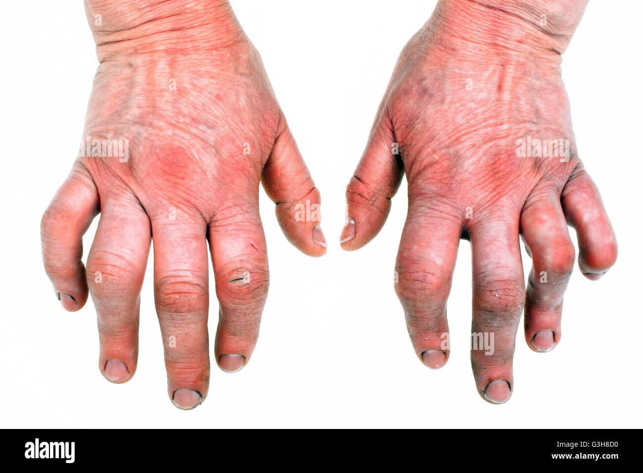 Woman S Hands Deformed From Rheumatoid Arthritis Stock Photo Alamy