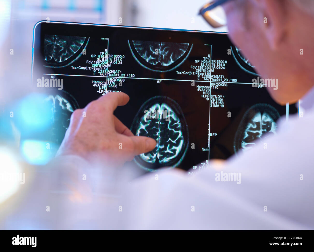 Radiologist assessing CT brain scan - Stock Image