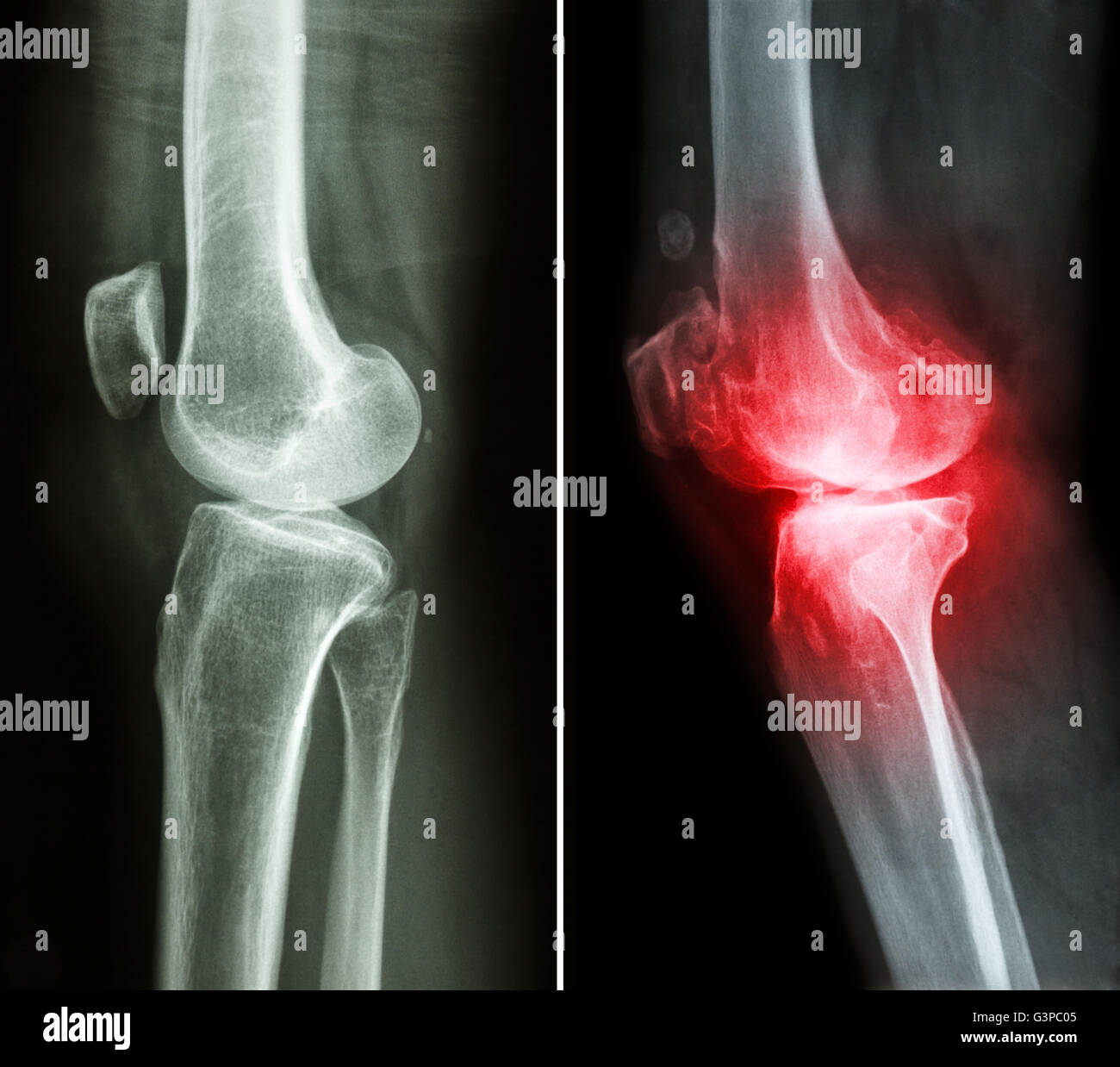 normal knee ( left image ) and osteoarthritis knee ( right image ) ( lateral view ) - Stock Image