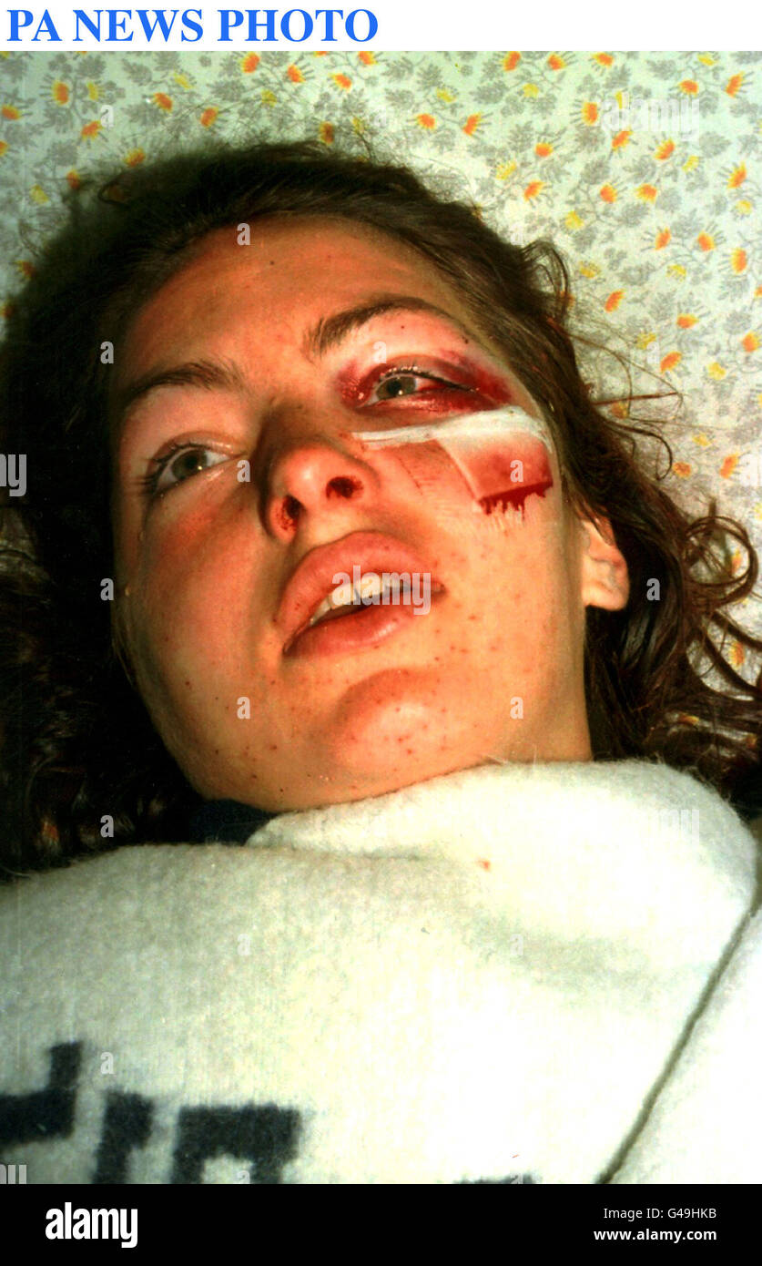 PA NEWS PHOTO 13/8/97 BRITISH TOURIST CHARLOTTE GEBBE AS SHE WAKES UP AFTER UNDERGOING SURGERY IN THE SOROKA HOSPITAL - Stock Image