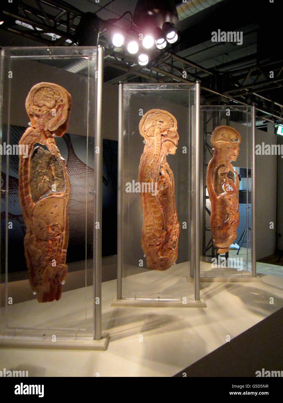 Bodies Revealed Exhibition Stock Photo Alamy