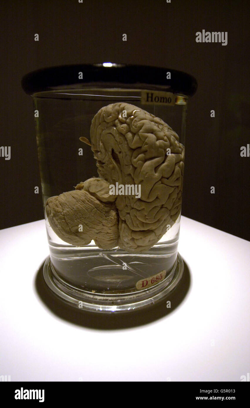 babbage brain