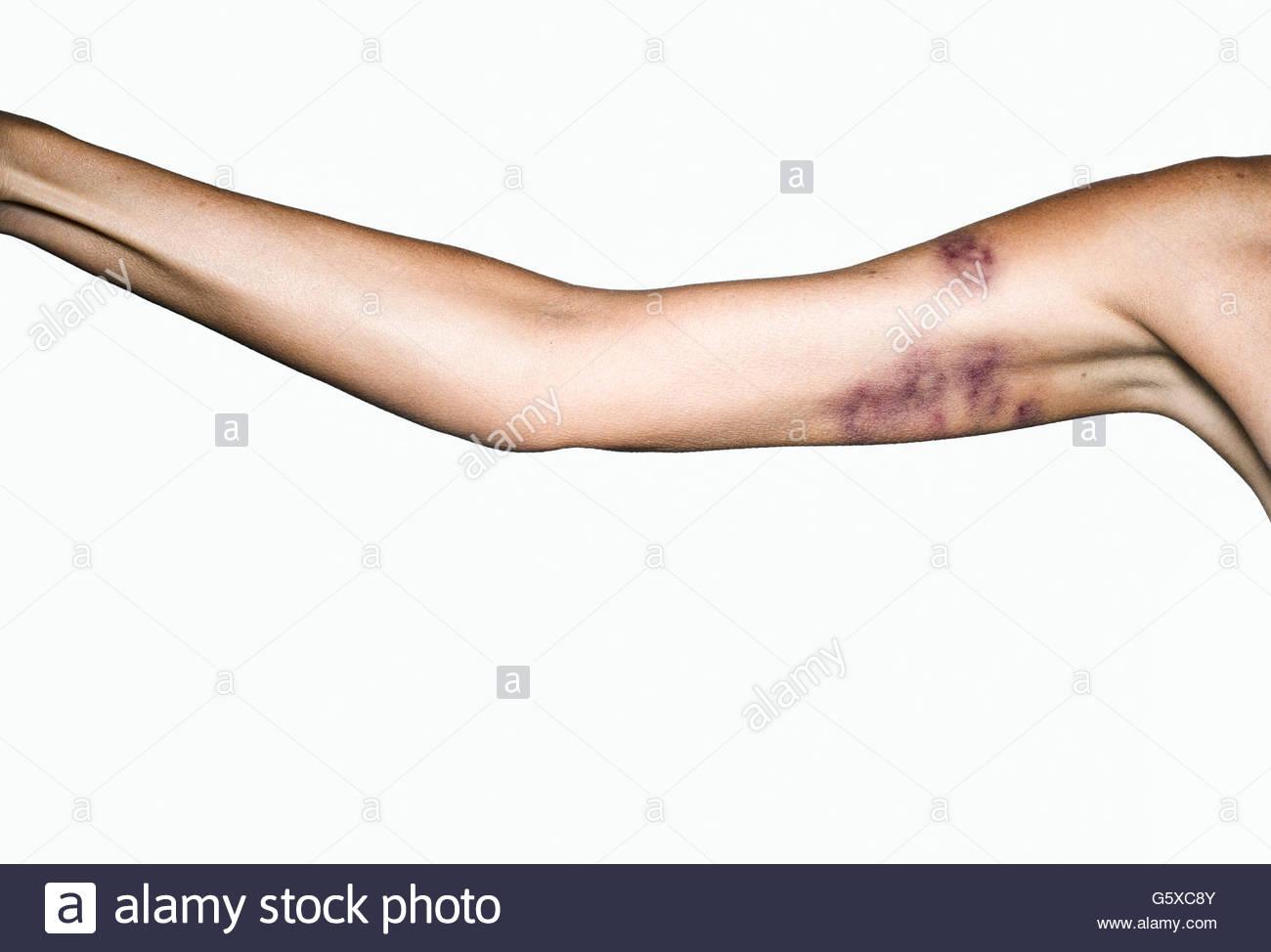 Bruised female arm - Stock Image