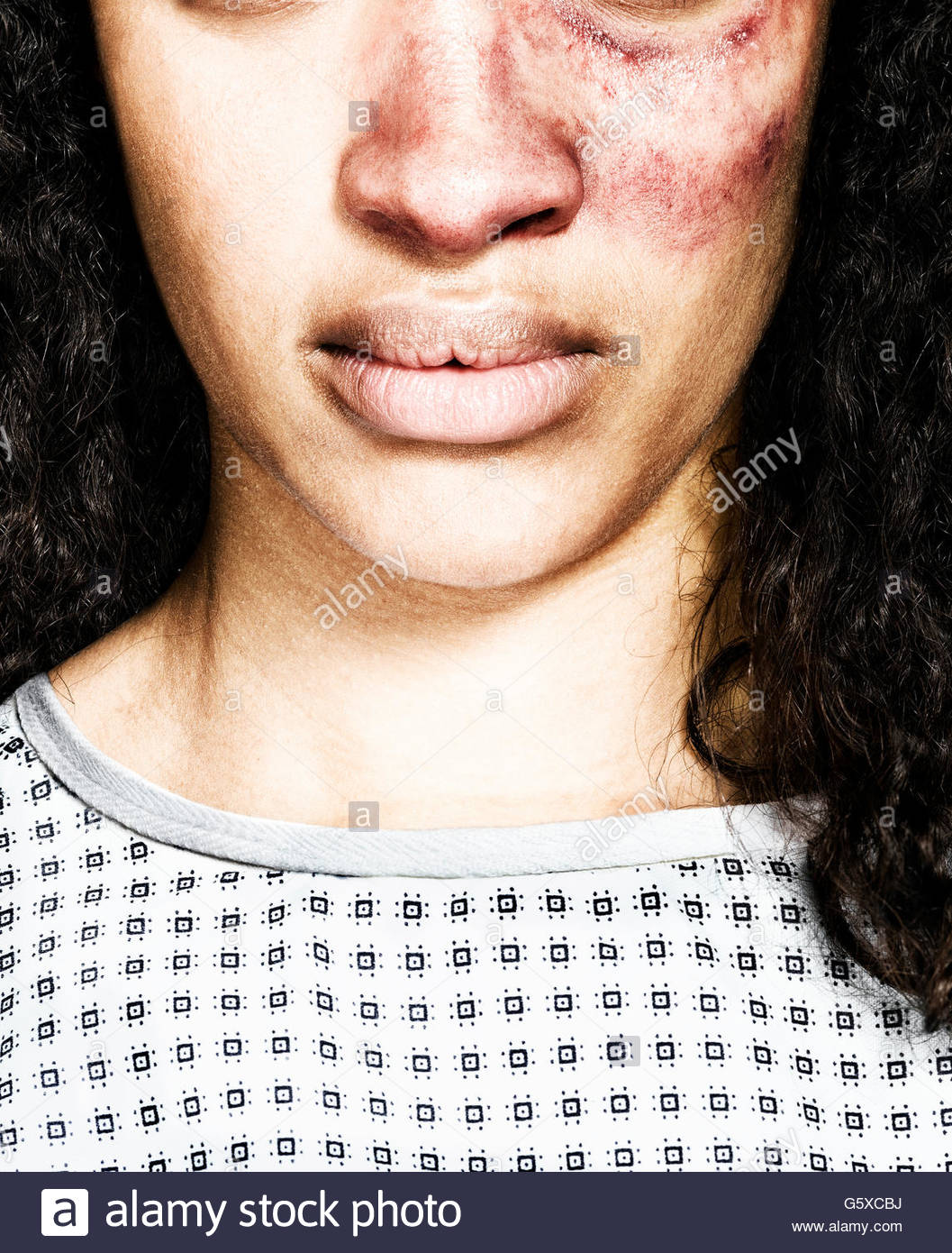 Young woman with badly bruised face - Stock Image