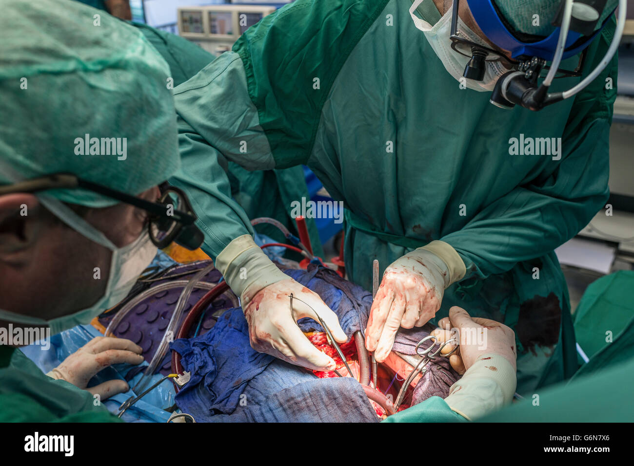Surgeons executing heart bypass surgery - Stock Image