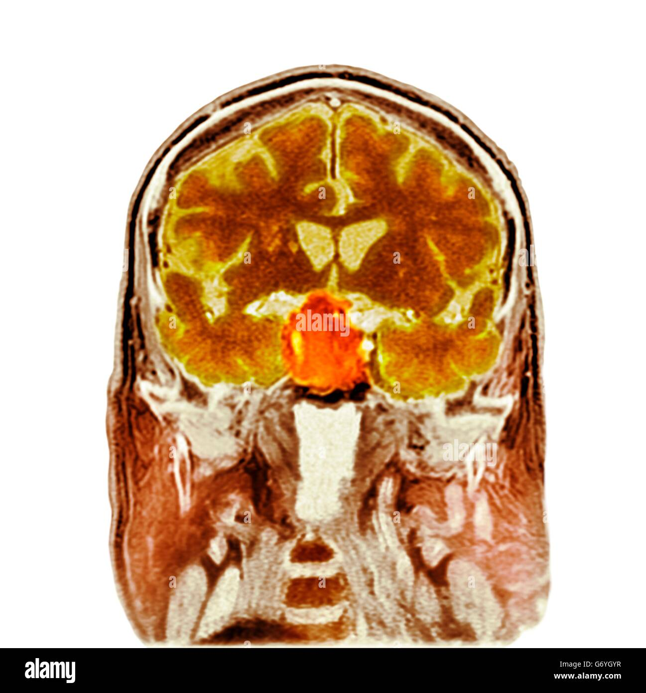 Pituitary tumour. Coloured computed tomography (CT) scan of a section through the brain of an 84-year-old male patient - Stock Image