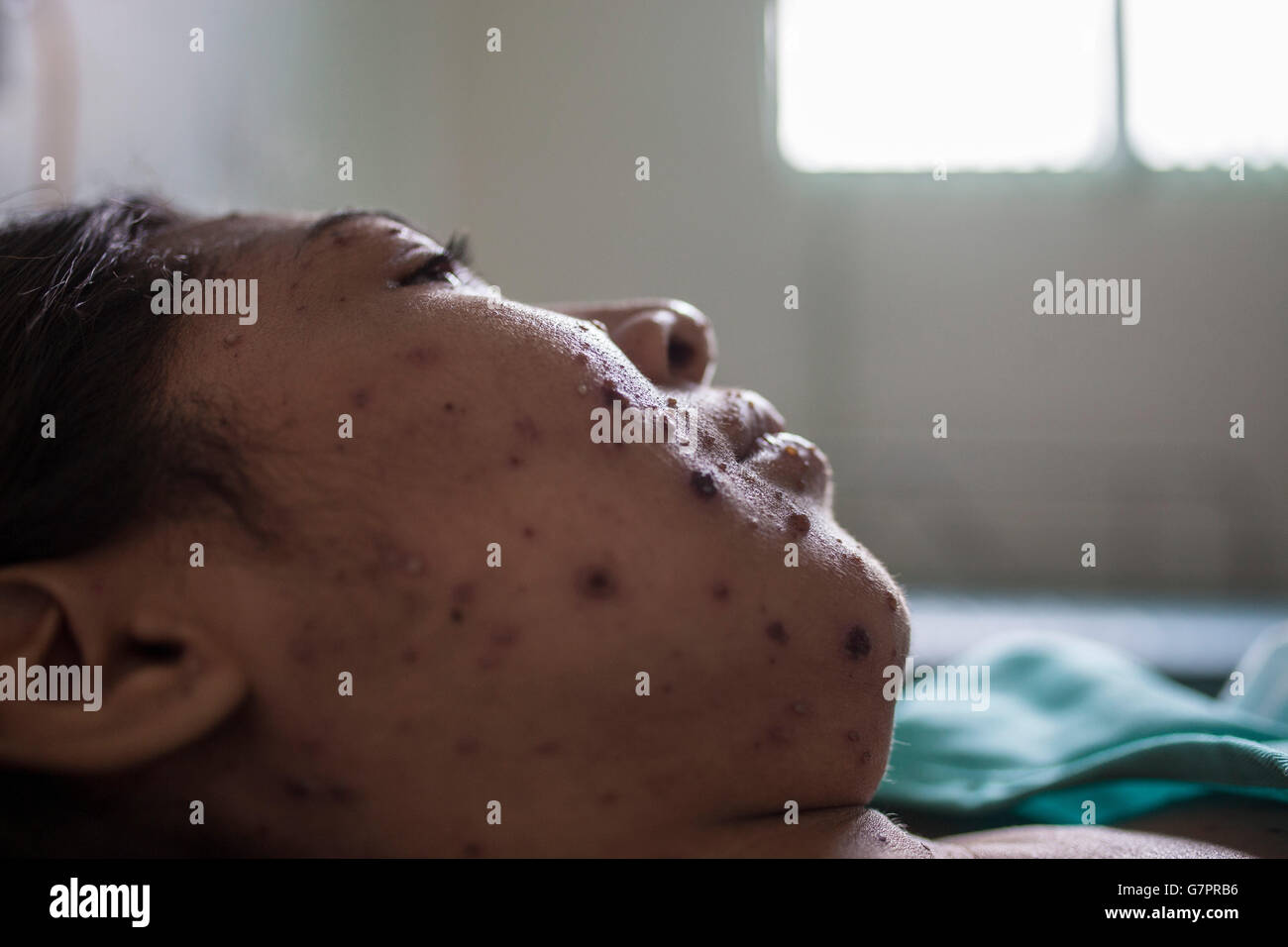 Measles, a highly contagious infection caused by the measles virus is an airborne disease which spreads easily through - Stock Image