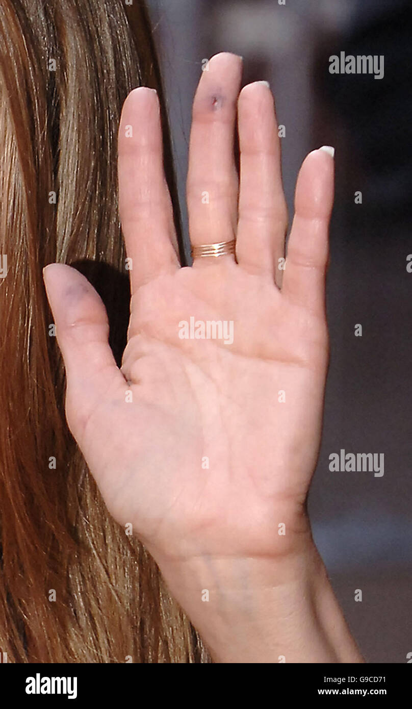 Jennifer Aniston with a cut/bruise on her finger, as shearrives at ...