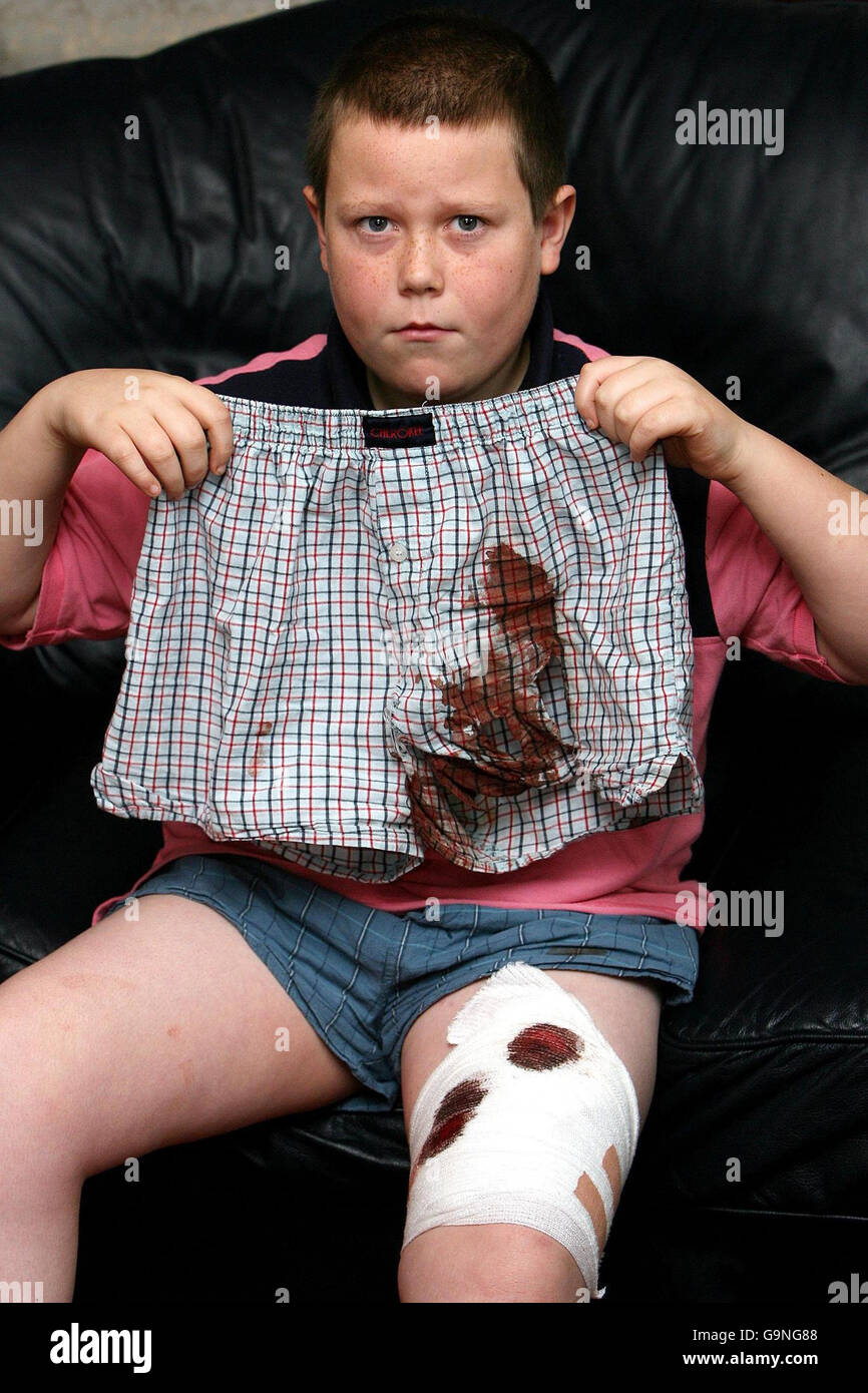 Newcastle dog attack - Stock Image