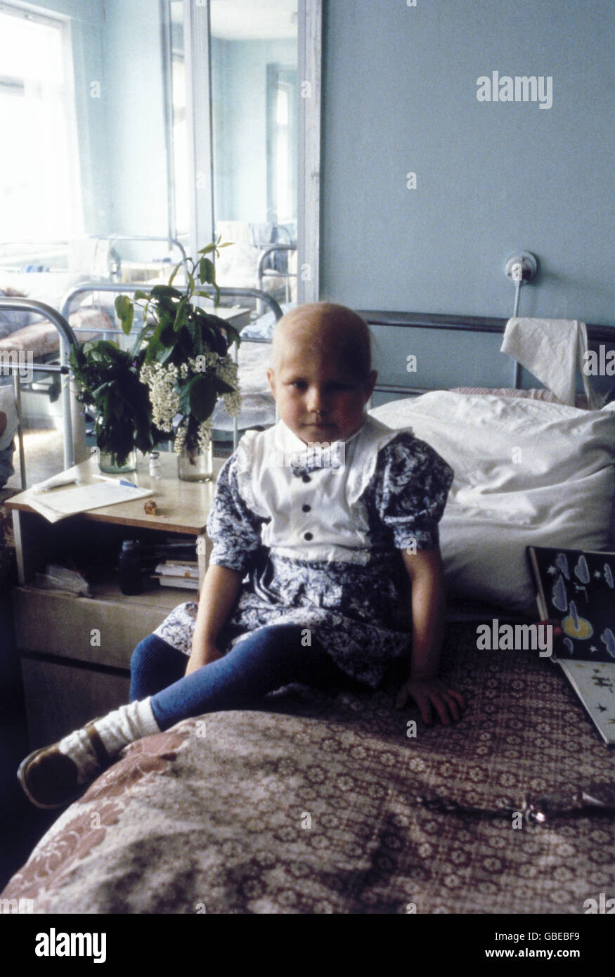 medicine, disease, clinical pictures, symptoms, disease pattern, children in hospital after Chernobyl disaster, - Stock Image
