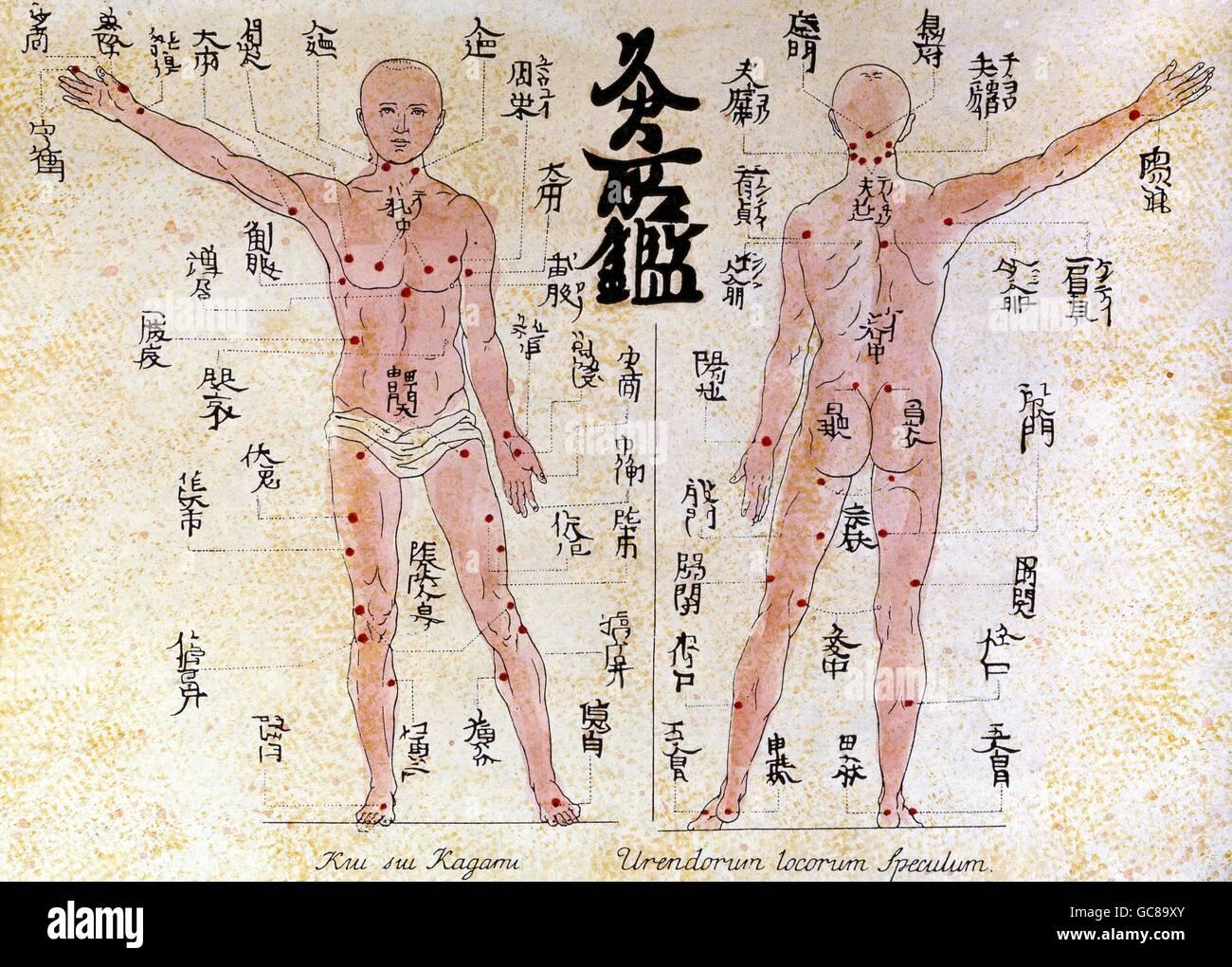 medicine, acupuncture, plate with acupuncture illustrations, woodcut coloured, from 'Amoenitatum Exoticarum - Stock Image