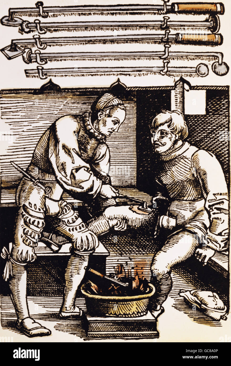 medicine, treatment, cauterization, woodcut, coloured, from 'Feldtbuch der Wundartzney', by Hans von Gersdorff, - Stock Image
