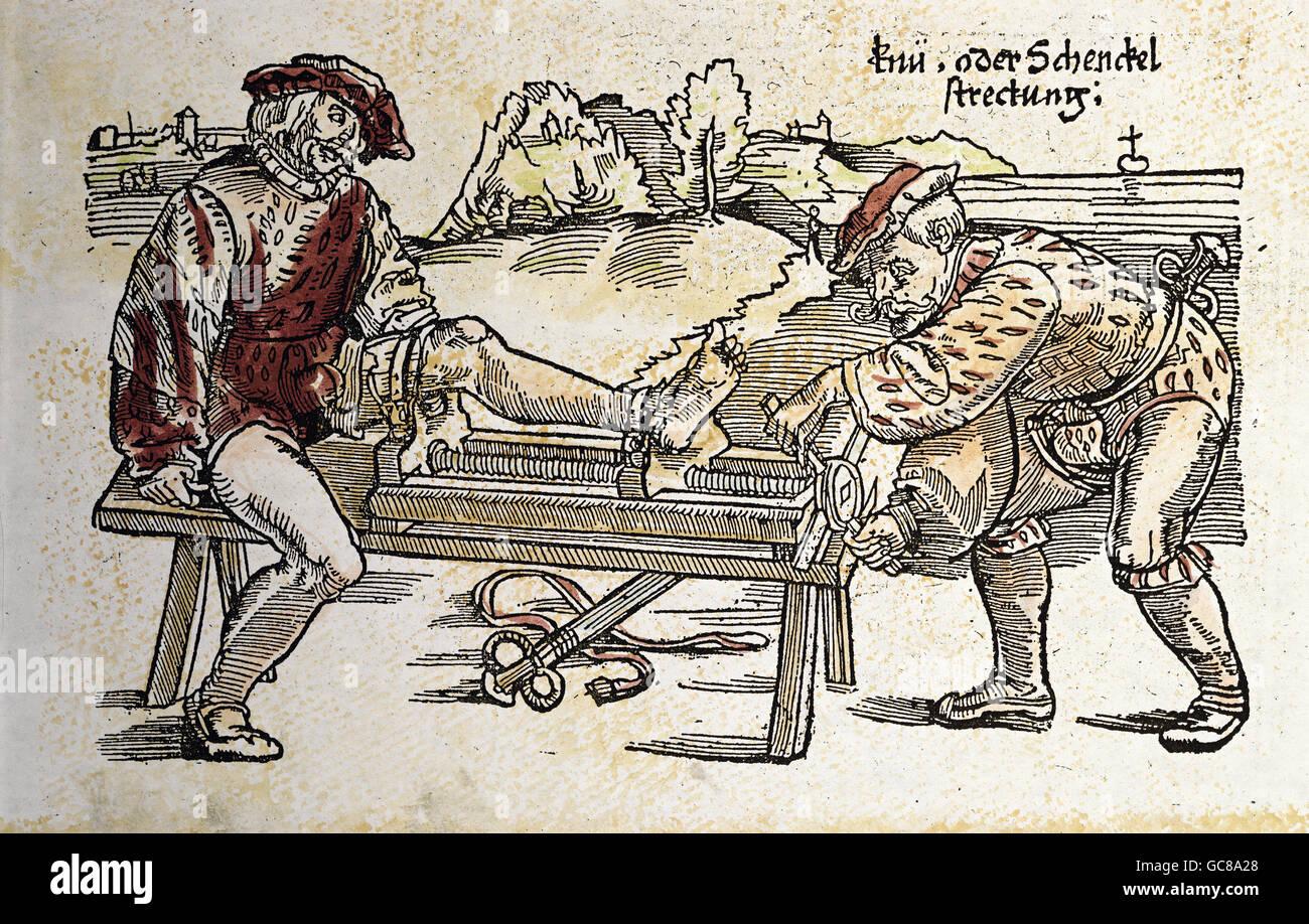 medicine, treatment, treatment of the knee or the lower leg, woodcut, coloured, from 'Feldtbuch der Wundartzney', - Stock Image