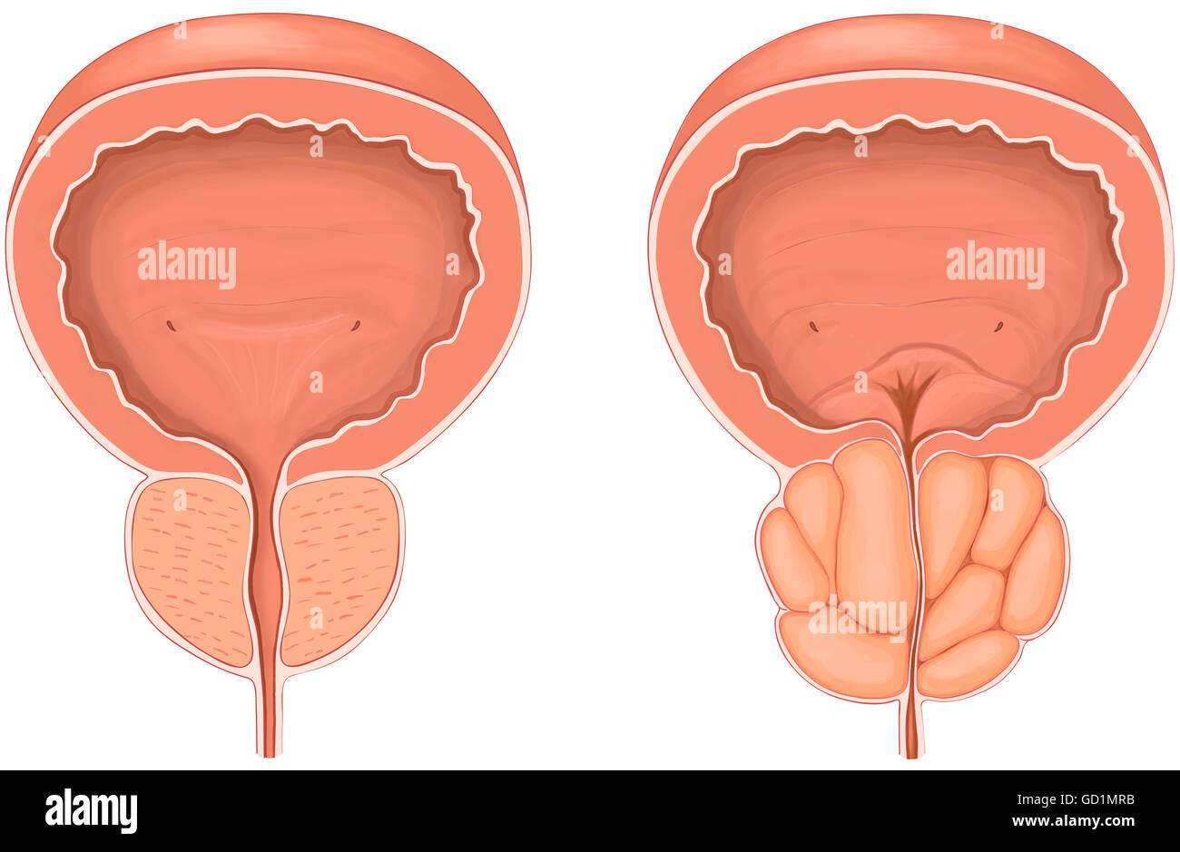 Anterior view showing normal versus enlarged prostate gland - Stock Image