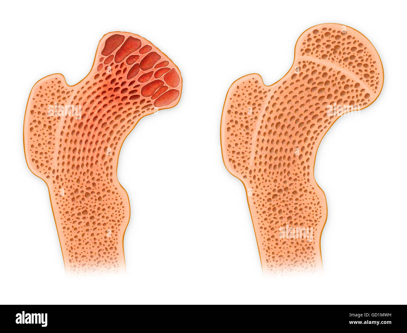 Cross Section Bone Stock Photos Cross Section Bone Stock Images