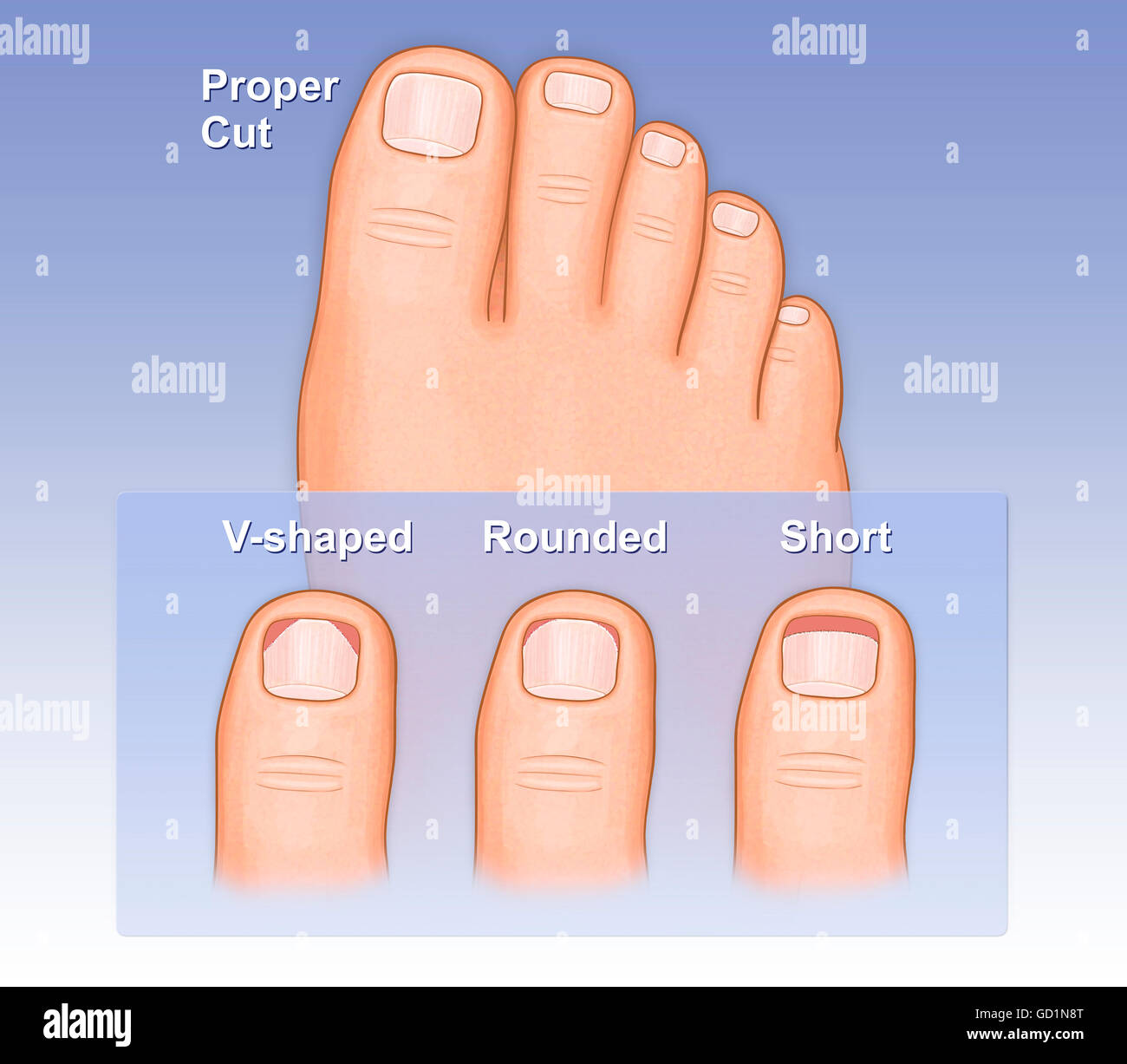 Showing a proper way to cut toe nails versus and improper way, shown ...