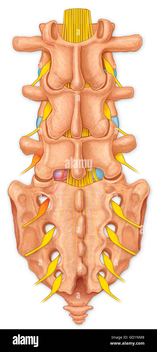 Posterior View Of The Lumbar Spine Showing A Bulging Disk And Stock
