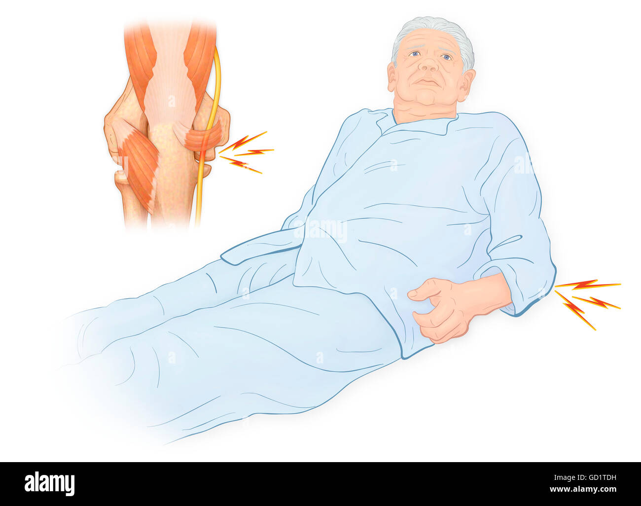 Anconeus Muscle Stock Photos Anconeus Muscle Stock Images Alamy