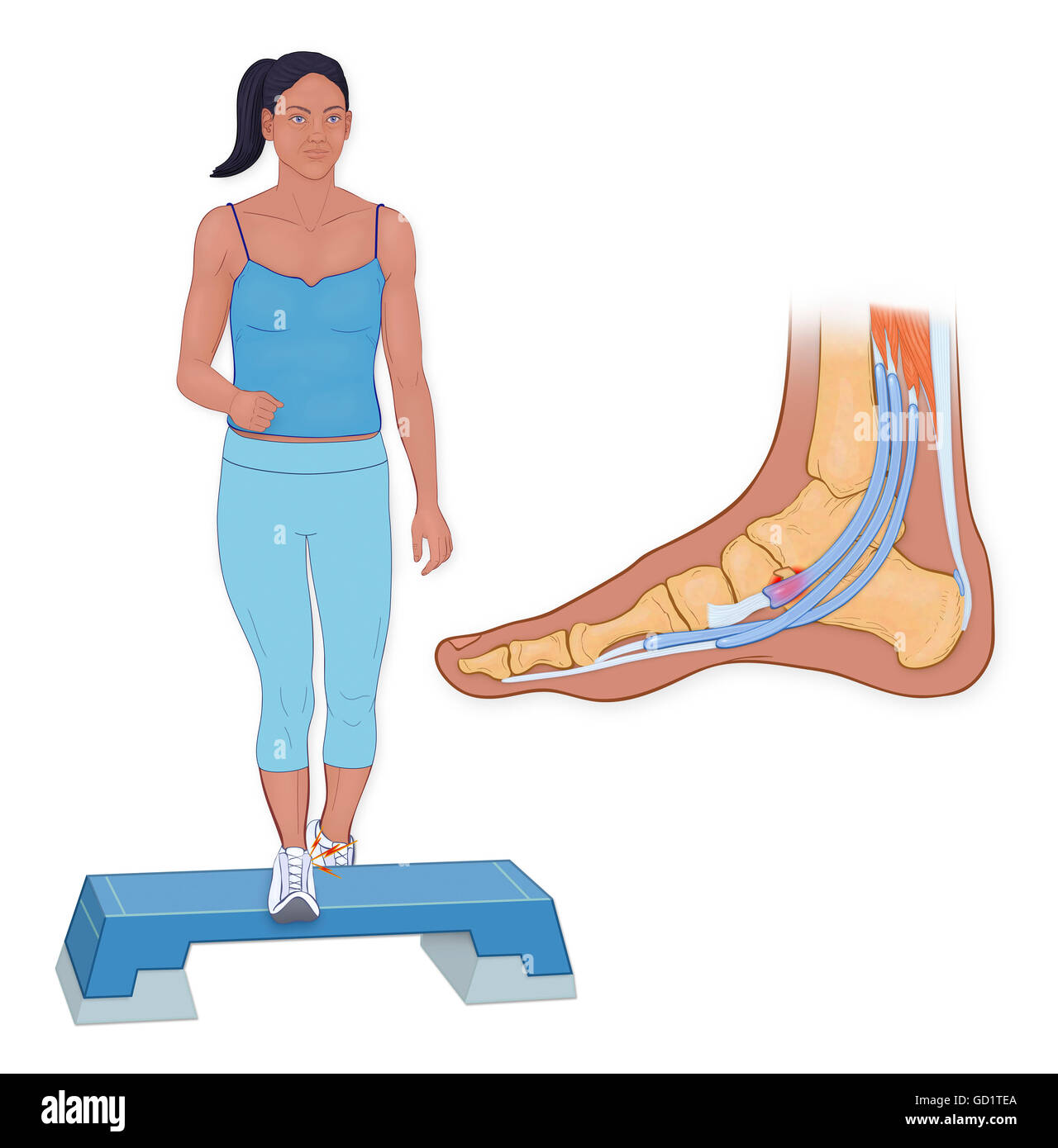Os Trigonum Pain Syndrome is associated with high impact force or activites on the foot - Stock Image