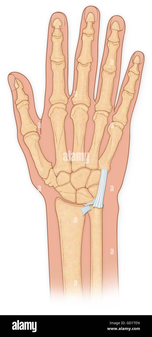 Hand bones with injury Stock Photo: 111293917 - Alamy