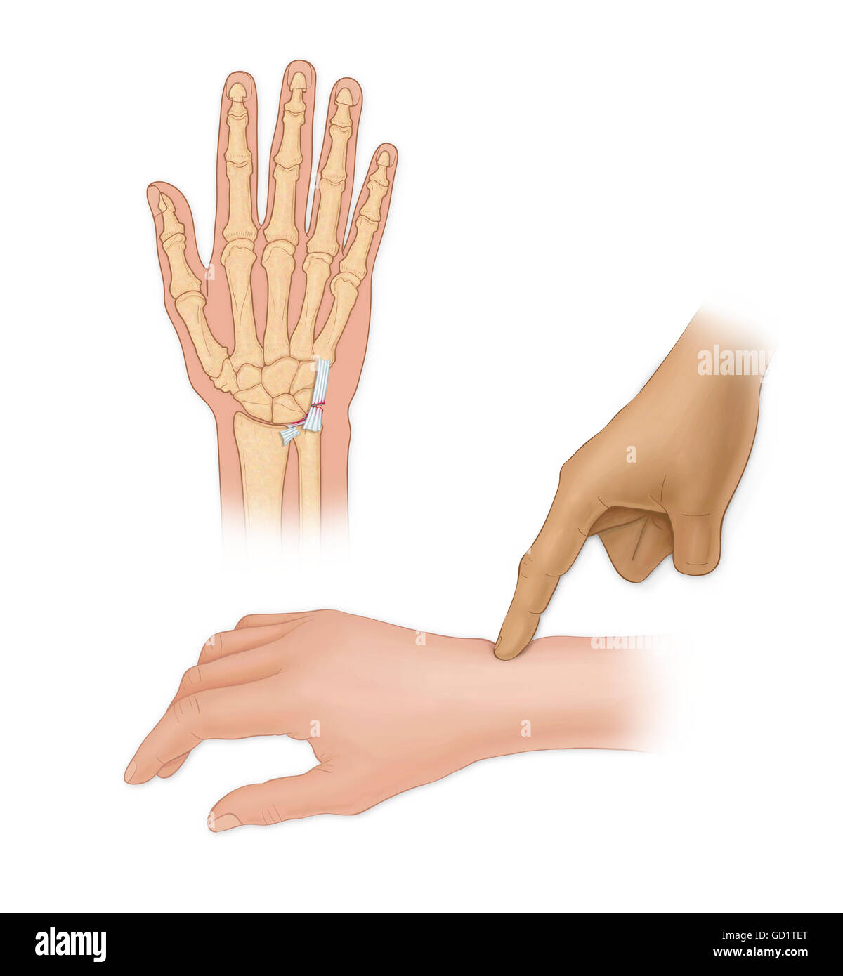 Hand bones with injury and finger pointing to wrist Stock Photo ...