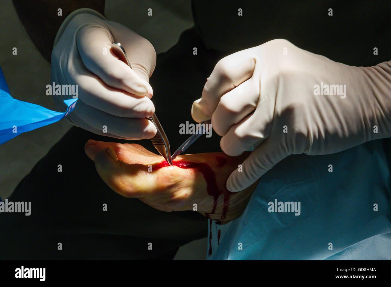 Foot Surgery - Stock Image