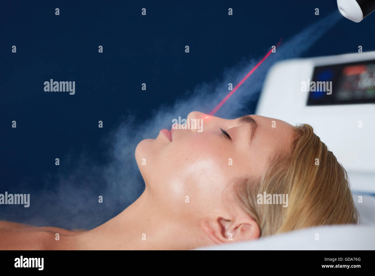 Localized cryotherapy session on the face of young woman. Treatment uses vaporized nitrogen to lower the skin temperature. - Stock Image